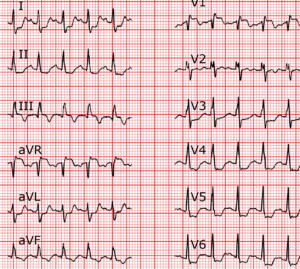 Figure ECG question 1